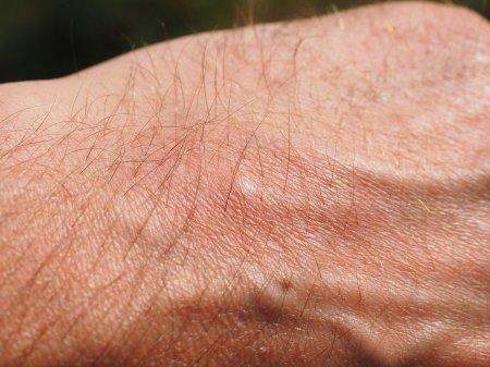Атопический дерматит – аллергическое заболевание кожи с наследственной предрасположенностью